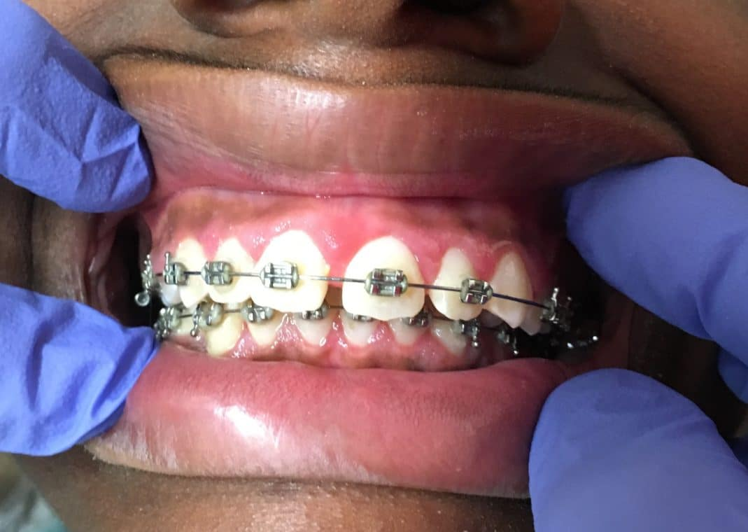 Gingivectomy for Gum Disease